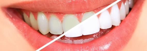 teeth whitening mesa.jpg