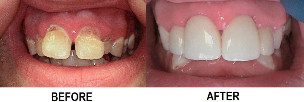 All Porcelain Zirconia CROWNS Only $579 each .