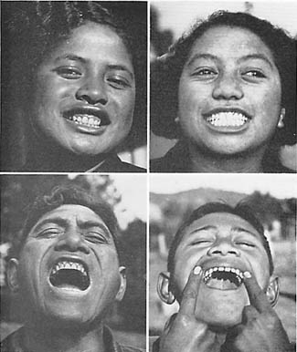 Typical Maori teeth BEFORE a Western Diet was introduced  Photos courtesy of Weston A. Price