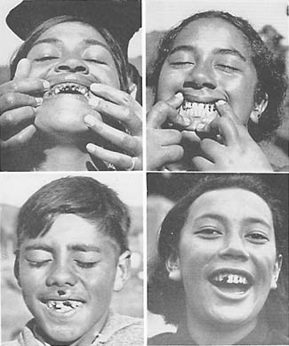 Typical Maori teeth AFTER a Western Diet was introduced  Photos Courtesy of Weston A. Price