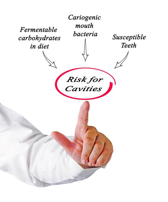 cavitychart.jpg