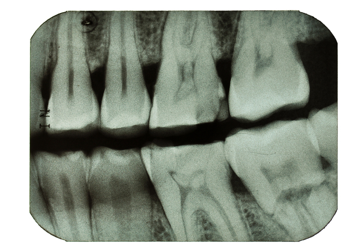 Bitewing X-ray. Notice the wear, cracked upper tooth and the lower right root fracture