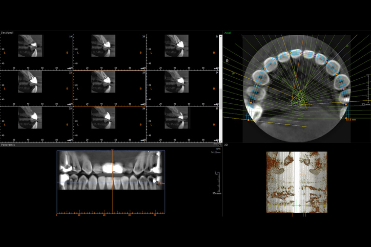 CBCT with variuos views