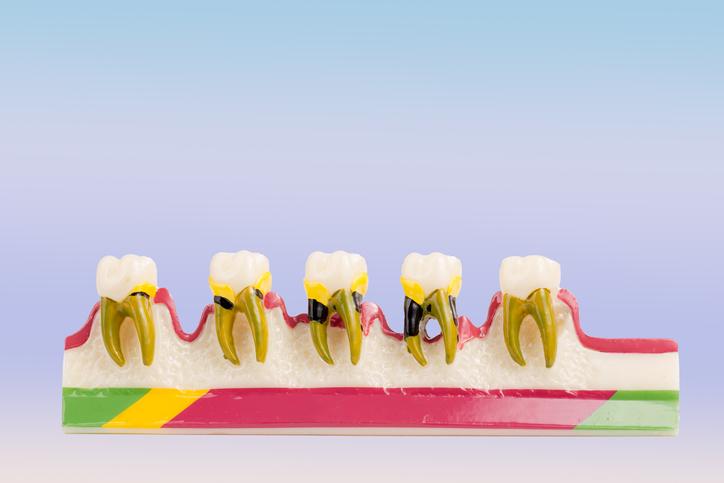 Row of Gum Disease.jpg