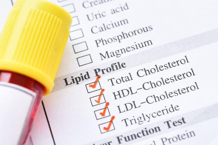 Cholesterol test tube.jpg