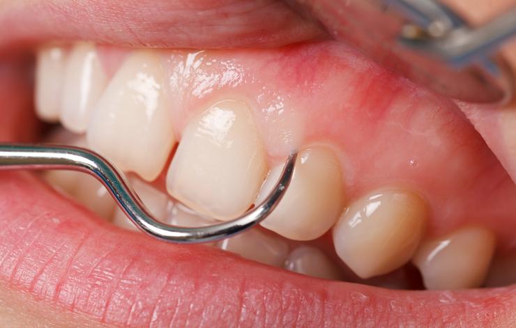 Scraping Teeth.jpg