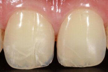 Cracked+teeth.jpg