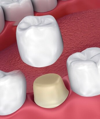 The tooth is reduced and the crown is cemented over it