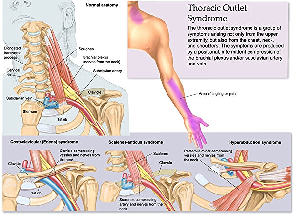 Image courtesy of http://mybwdoc.com/wp-content/uploads/2011/11/thoracic-outlet-syndrome.jpg