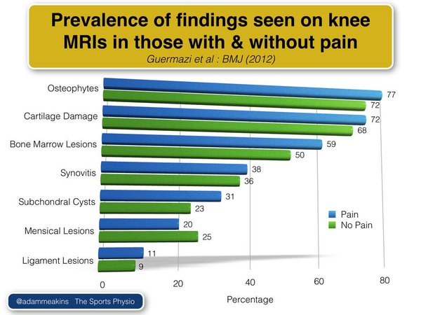 Findings on knee MRIs in those with/without pain