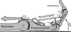 Finger pulley bowstringing.jpg