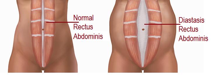 Diastasis-Rectus-1.png