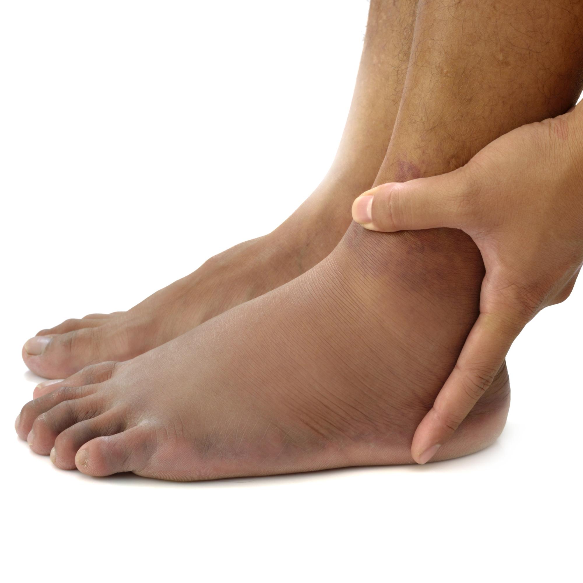 Swollen Ankle.jpg
