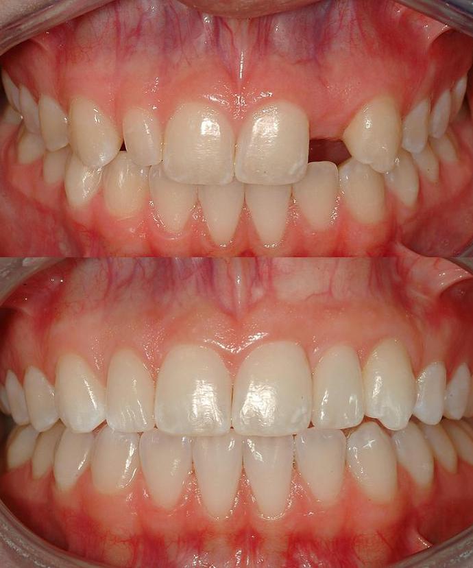 e.Max #'s 7 and 10, Zirconia Implant Abutment #10