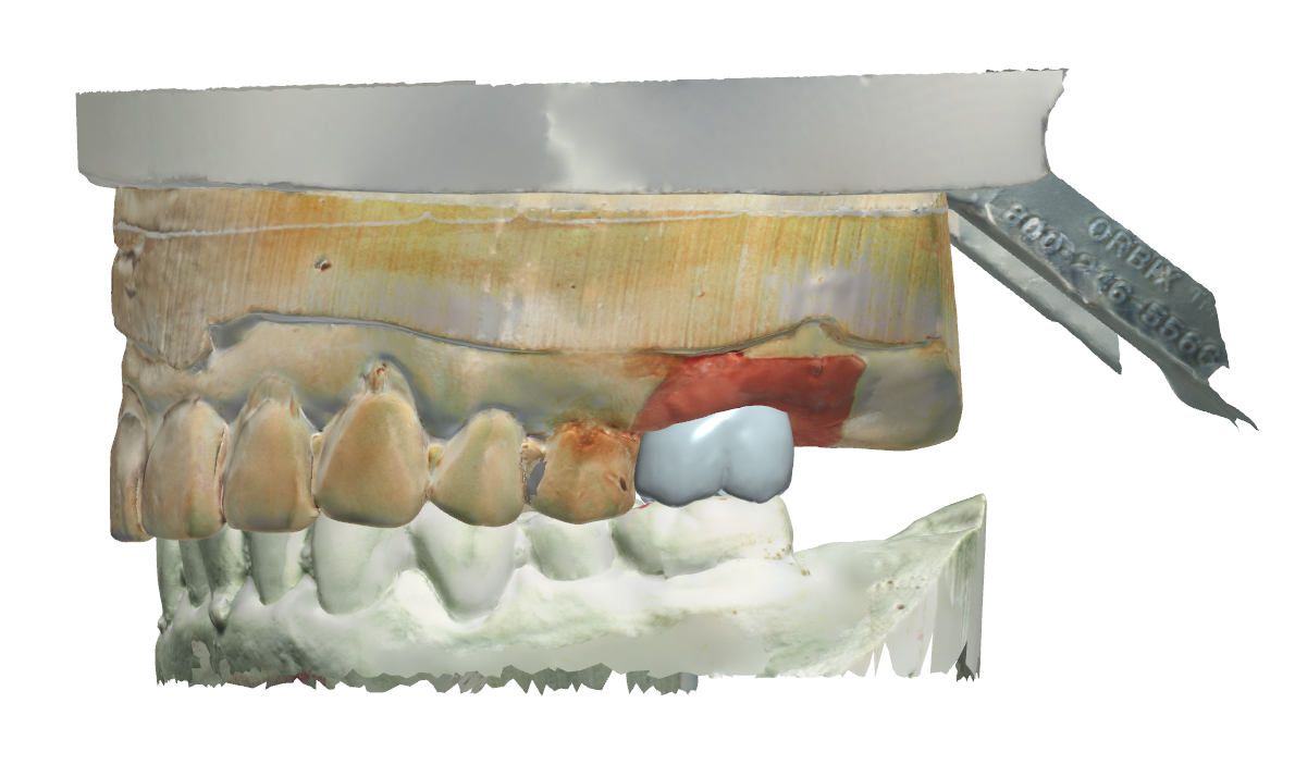 Digital Design of Screw Retained Crown
