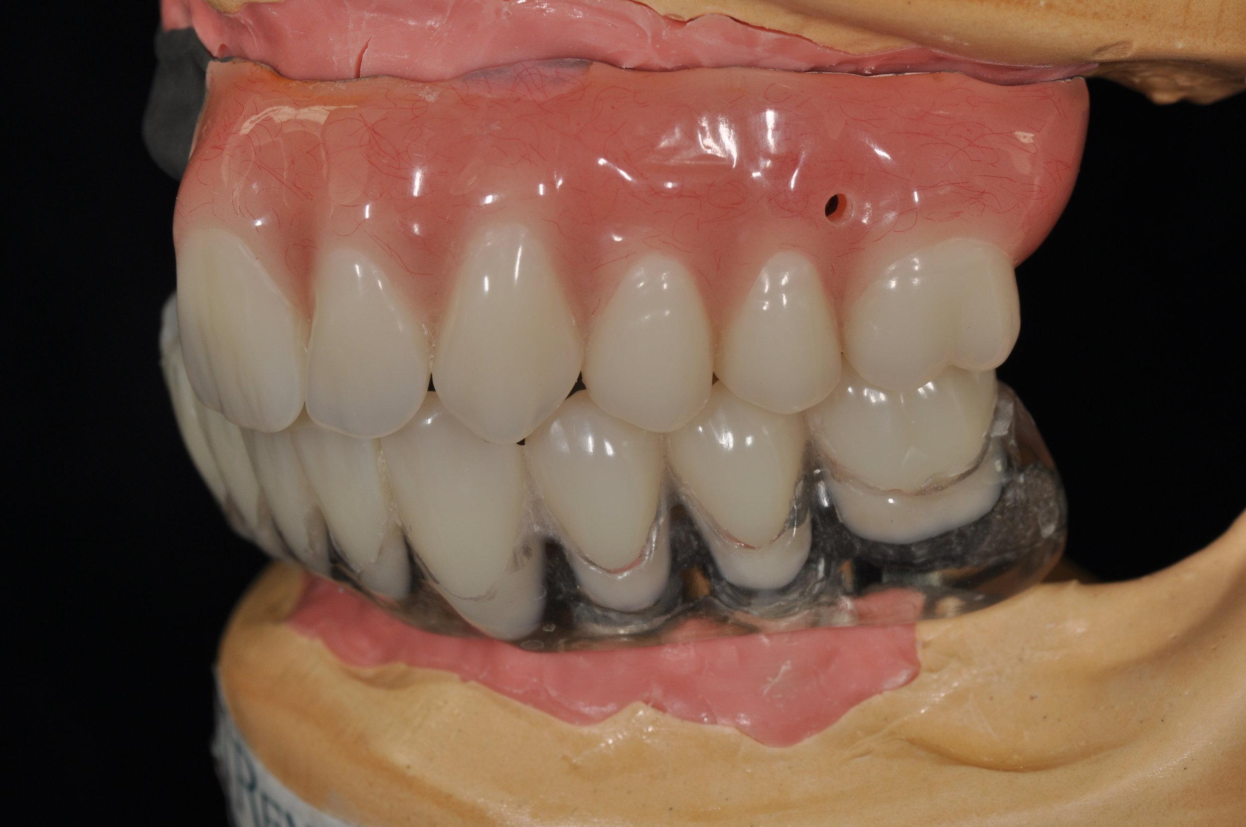 Hybrid Fixed Denture - Lower