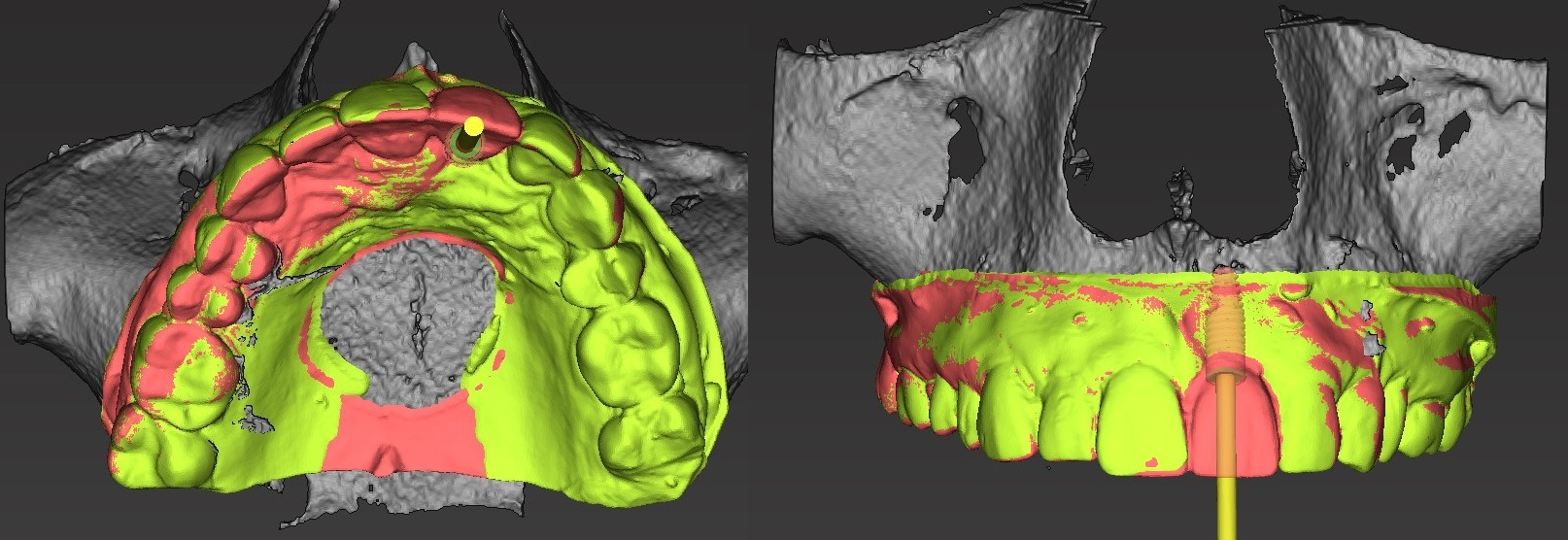 Figure 2b; Implant placement proposal relative to desired tooth position with digitized model replaceing tooth #9.