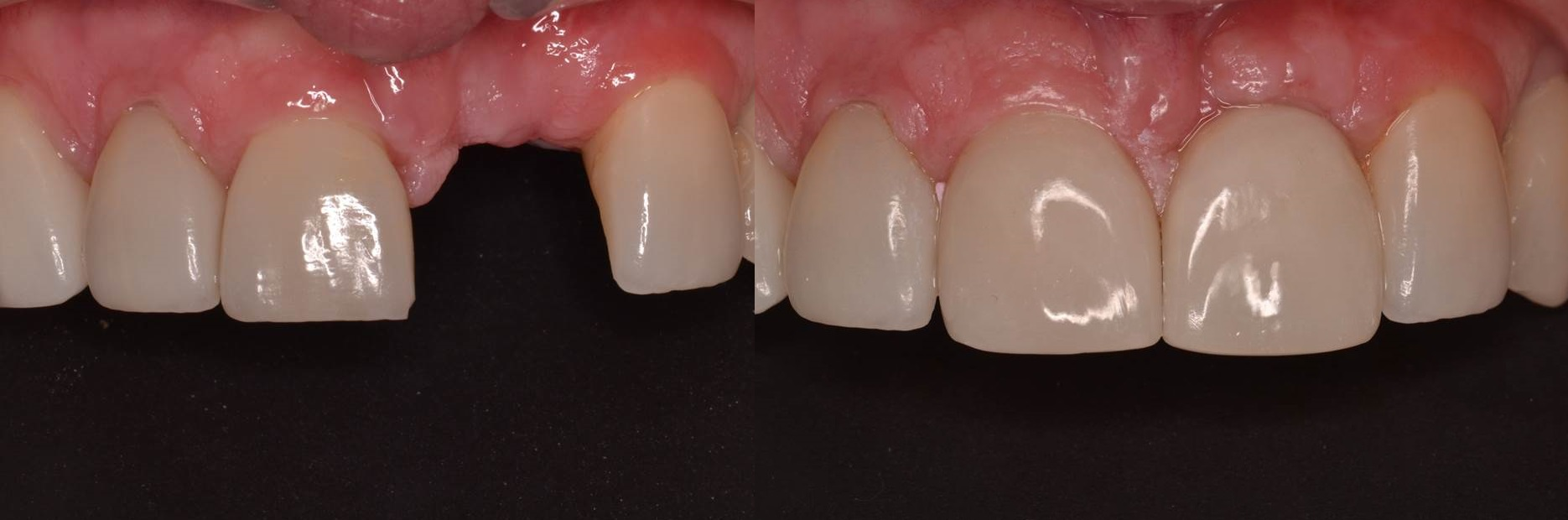 Figure 4 c; Before and after photo of restored dental implant to replace tooth #9 (from Figure 2 plan). Implant surgery performed by Dr. Andrew J. Carmosino, DDS, MS