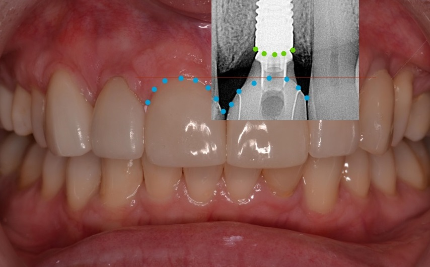 Figure 4d; Visualization of the fixture platform relative to the proposed gingival margin.