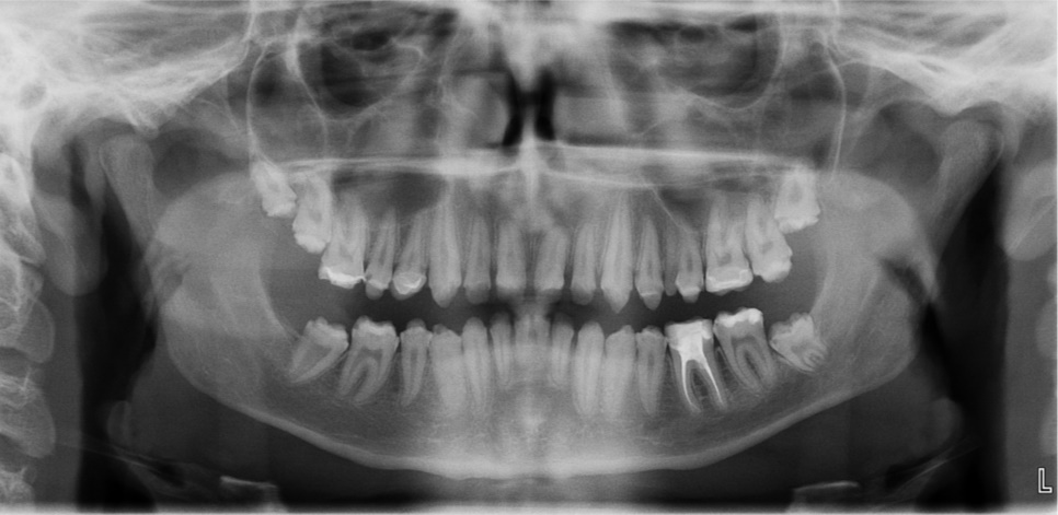 Figure 1a; A panoramic radiograph of the patient