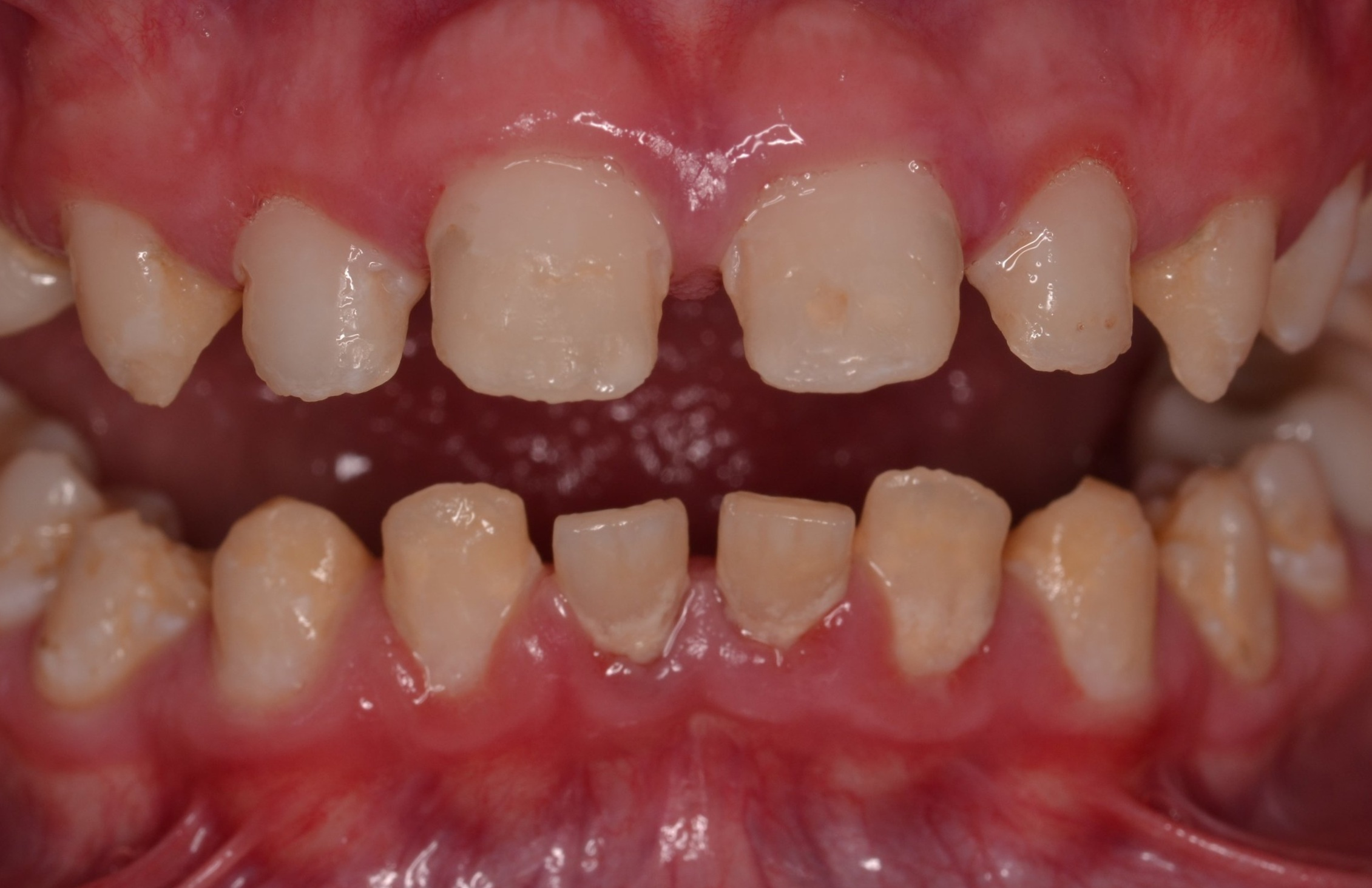 Figure 1c; A retracted (1:3 magnification) view of the patient's dentition pre-treatment