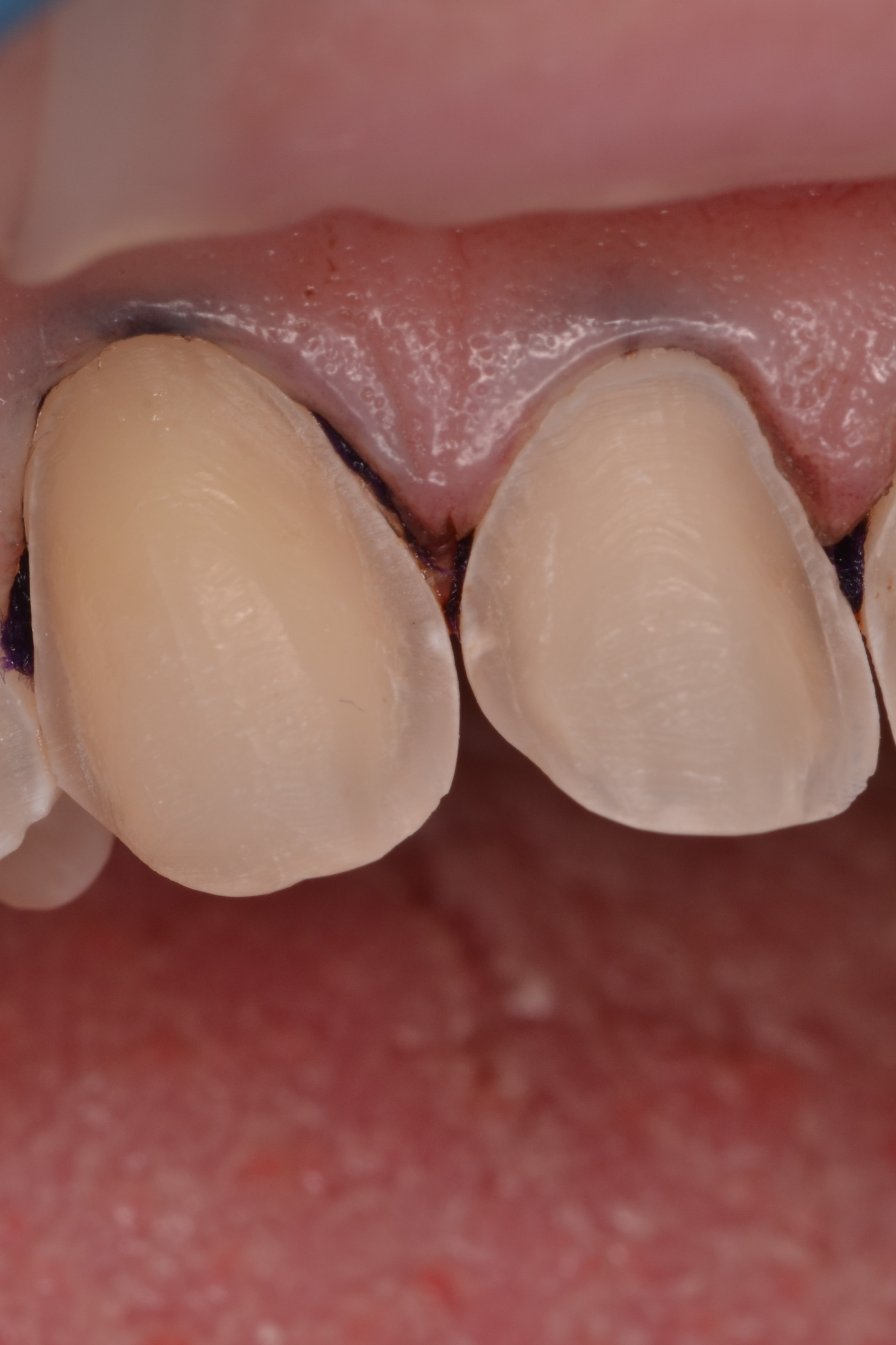 Figure 6; Interproximal caries discovered during initial tooth preparation