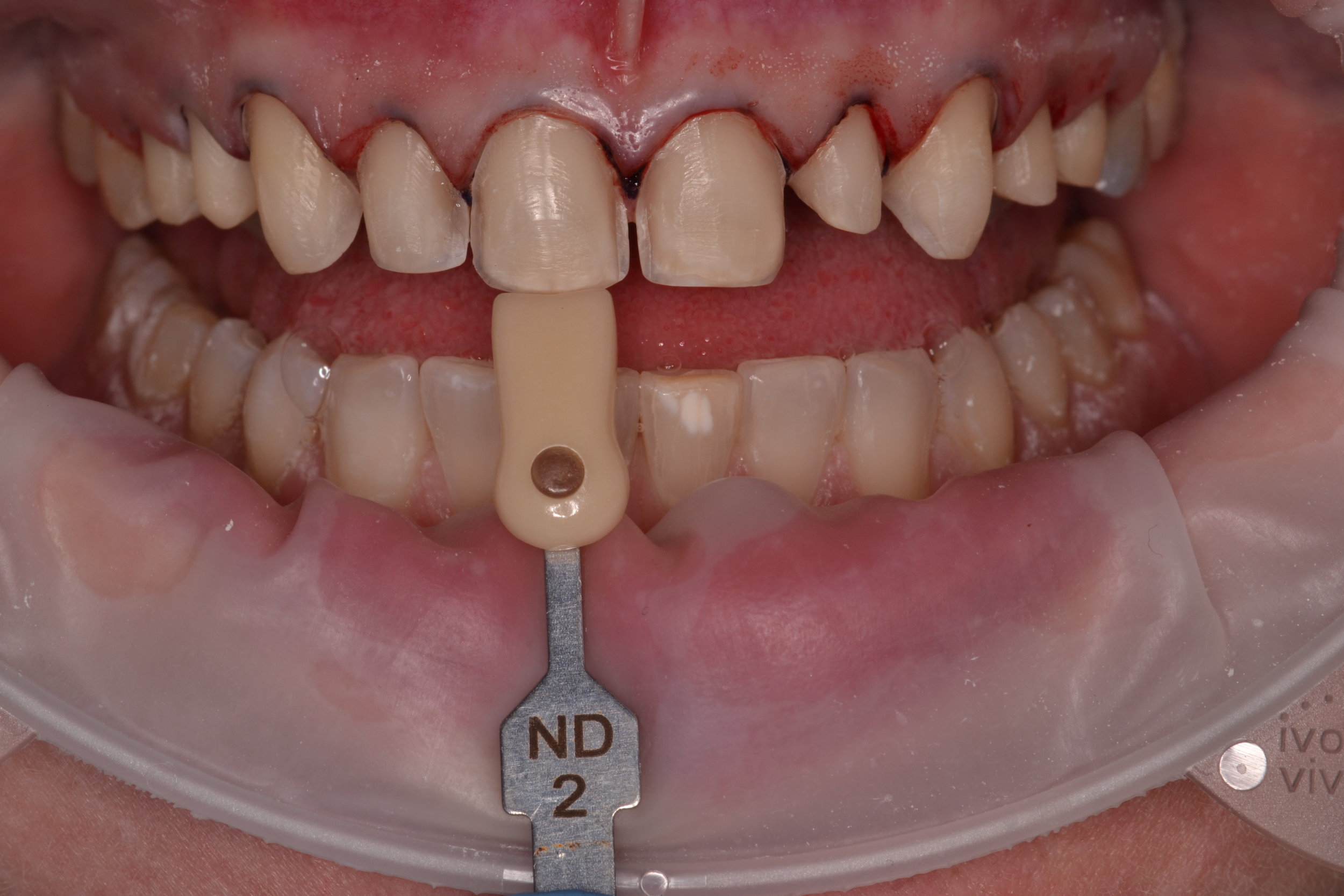 Figure 8; Die shade tab photo (photos of ND1 and ND2 were both provided to the dental laboratory)