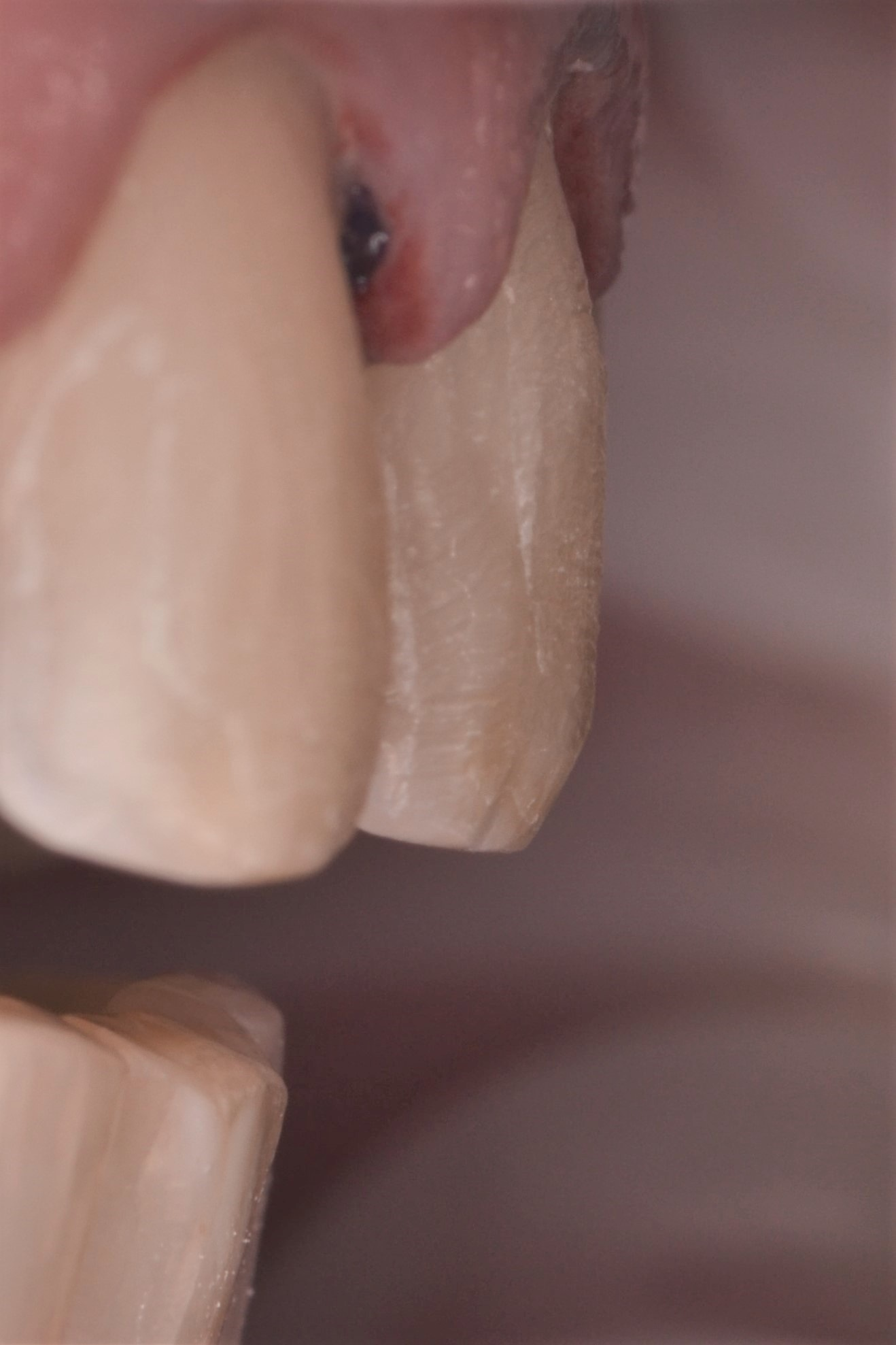 Figure 4e; The completed facial reduction of the maxillary left central incisor.