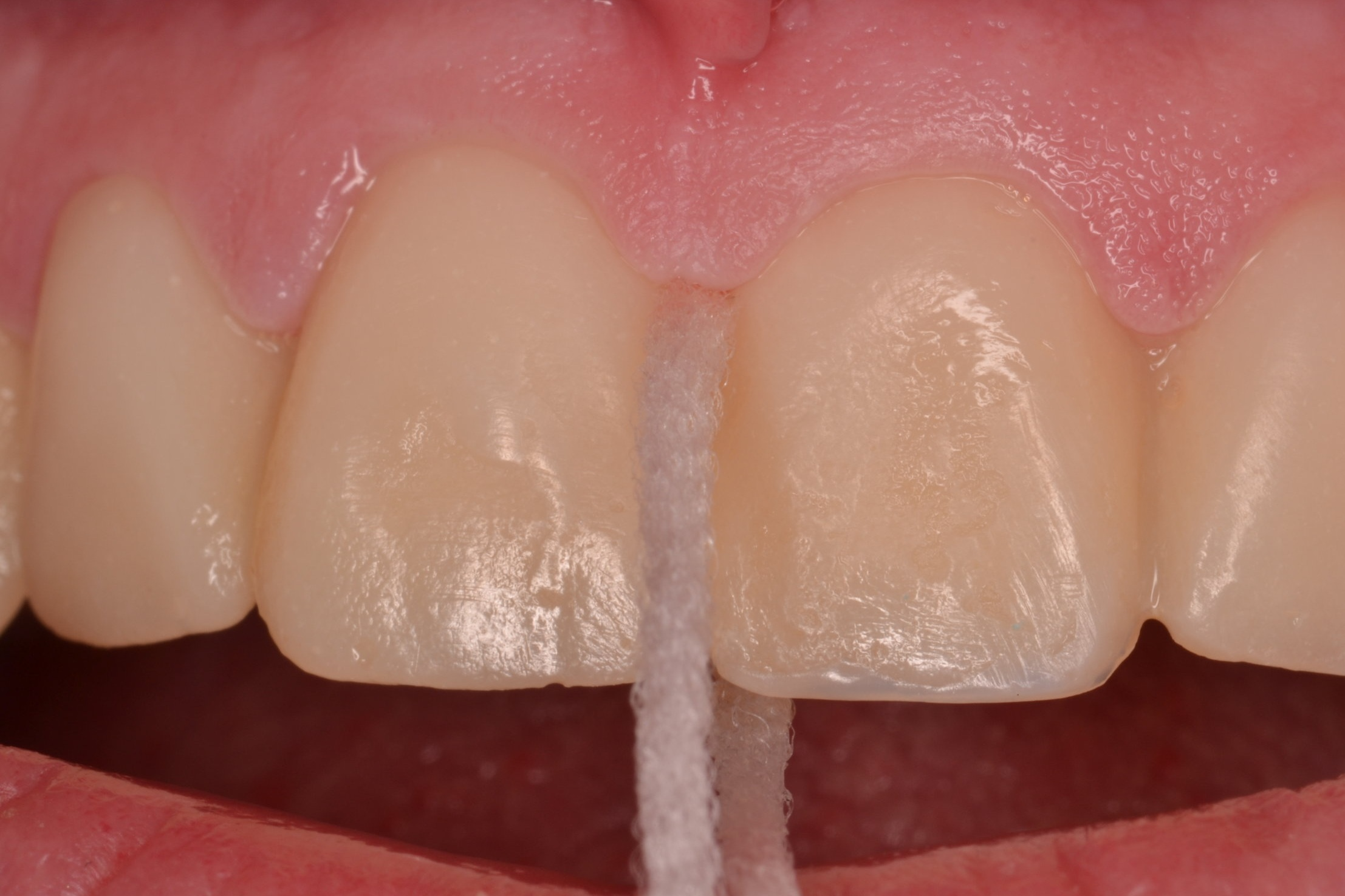 Figure 10; passing super-floss through healthy gingival embrasures post-operatively.