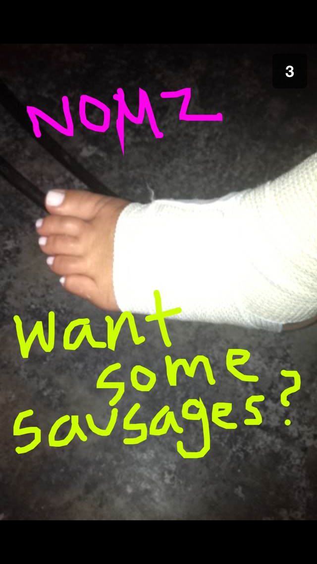 The joys and wonders of snapchat. Swelling is no fun.