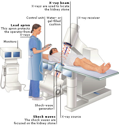 Image credit: Complete Home Medical Guide © Dorling Kindersley Limited 2010