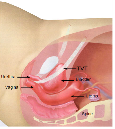 Side view: TVT in position, supporting bladder neck