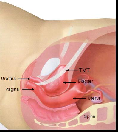 側面図:TVTが所定の位置にあり、膀胱頸部を支えている