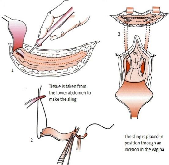 Rectus fascia sling procedure