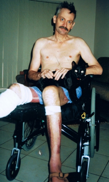 June 2002 just home from hospital