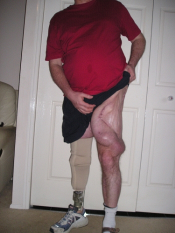 Left Leg Skin Expanders for Reconstruction Plastic Surgery