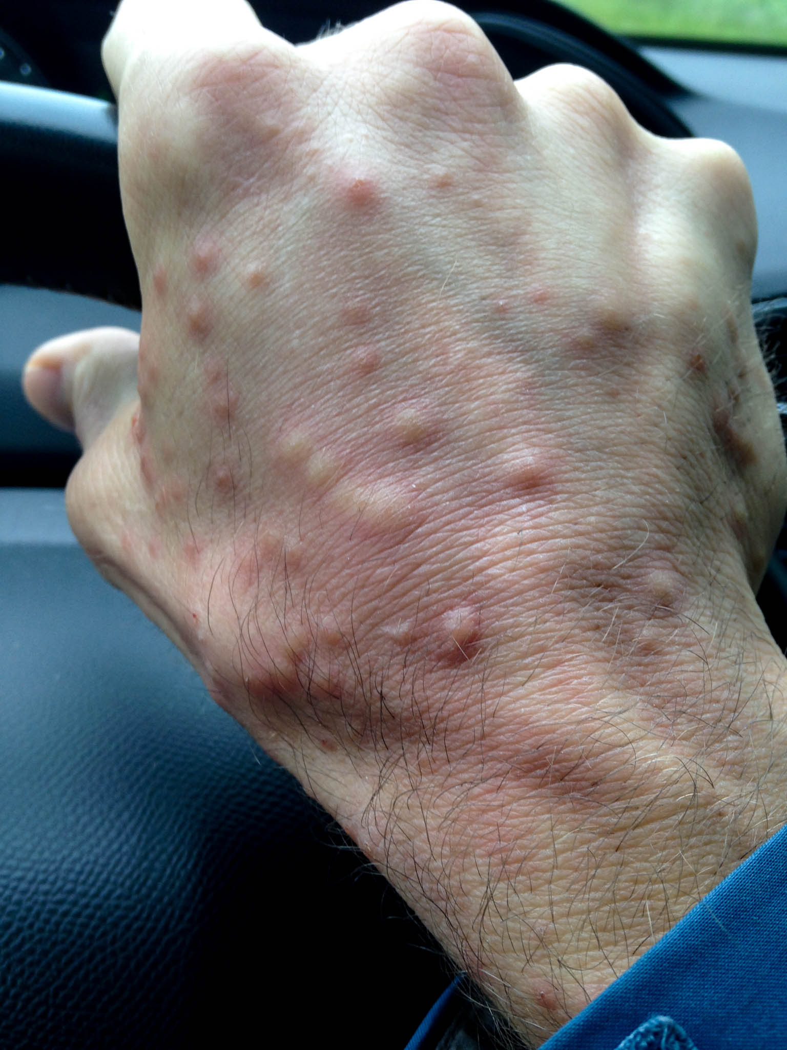 Tom's Mosquito Hand