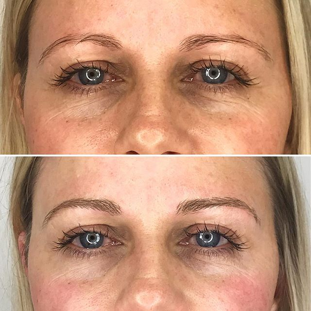 Microbladed brows doesn't mean you have to go darker. There are tons of options for all you blondes out there too! Strokes only for the look of a fuller brow using @brownude blades. . #microbladingworldwide #microbladingworld #microblading #microbladedbrows #microbladingyyc #yycmicroblading #calgarymicroblading #yycbrows #yycbrowsonpoint #yycbrowgame #yycmicropigmentation #calgarymicropigmentation #browcorrection #browgame #browworld #semipermanentbrows #yycsemipermanentmakeup #yycsemipermanentbrows #abhbrows #kbb #abh #kellybakerbrows #desiperkins #chrisspy #beautycon #beautyworld #  #harmonyblades