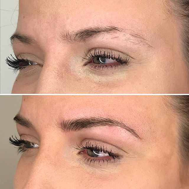 Clean those puppies up!! Microblading strokes only for natural brows. . #microbladingworldwide #microbladingworld #microblading #microbladedbrows #microbladingyyc #yycmicroblading #calgarymicroblading #yycbrows #yycbrowsonpoint #yycbrowgame #yycmicropigmentation #calgarymicropigmentation #browcorrection #browgame #browworld #semipermanentbrows #yycsemipermanentmakeup #yycsemipermanentbrows #abhbrows #kbb #abh #kellybakerbrows #desiperkins #chrisspy #beautycon #beautyworld #tinadavies #harmonyblades