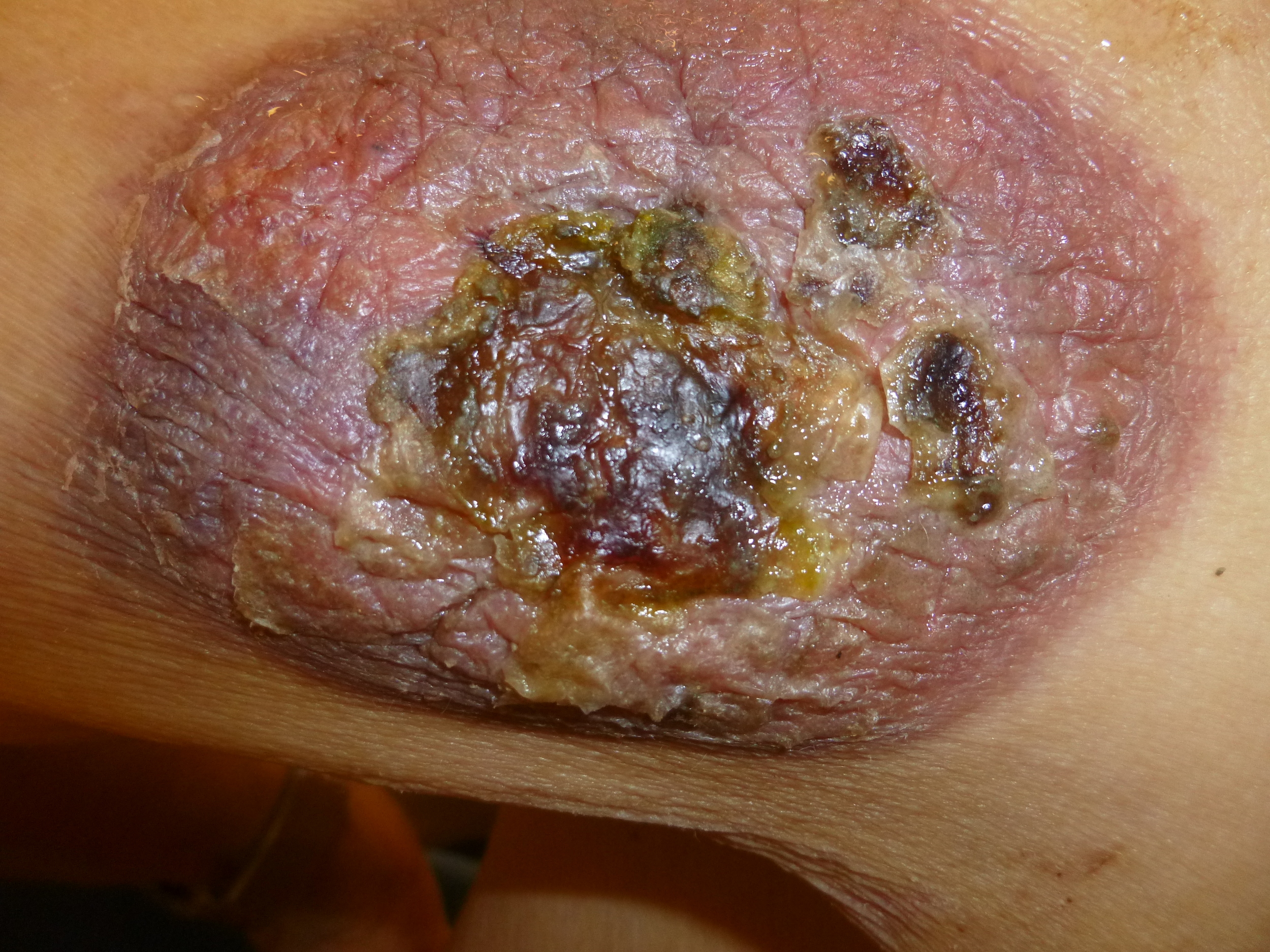 UNDER CHEMOTHERAPY    TUMOUR IS DISSOLVING - HEALING CONTINUES