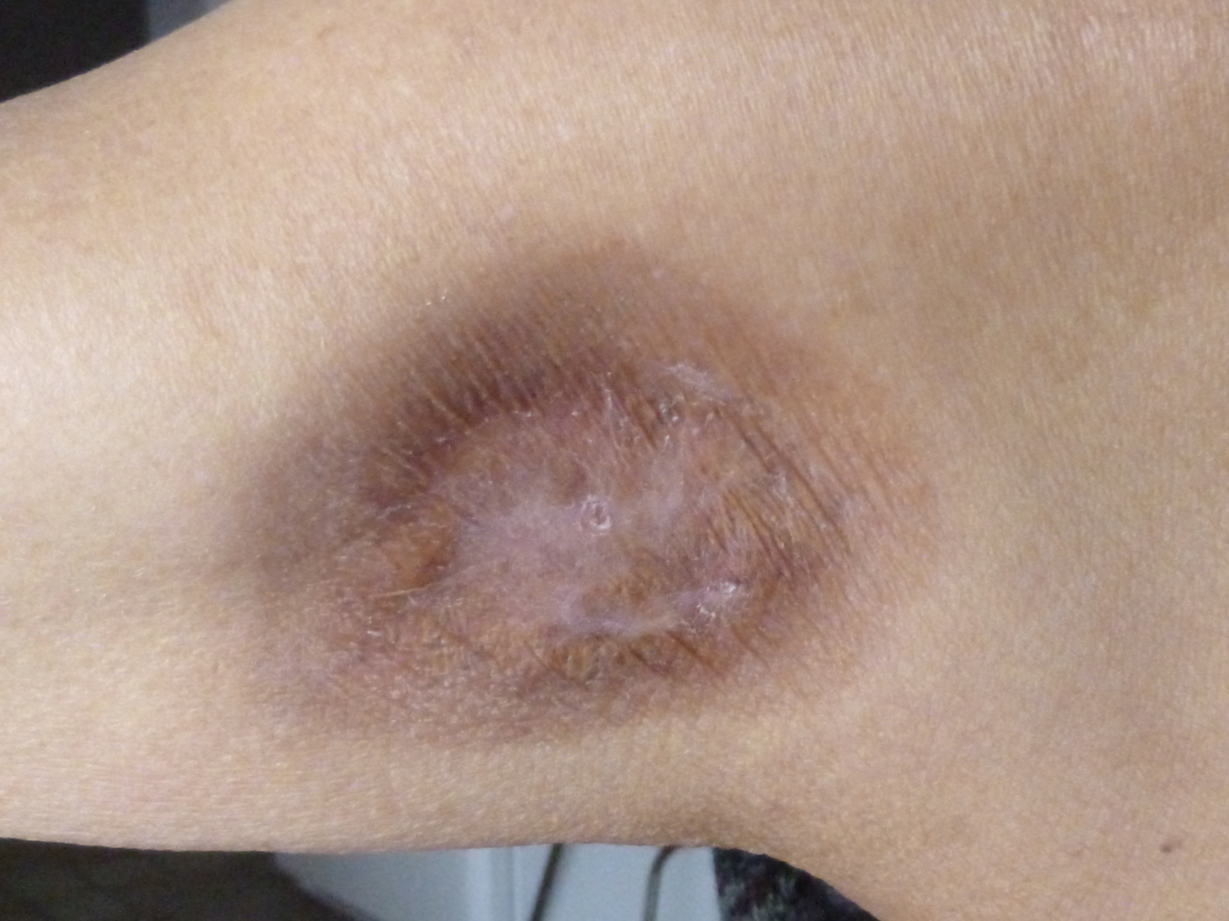 AFTER CHEMOTHERAPY   TUMOUR IS DISSOLVED - HEALING IS ALMOST COMPLETE