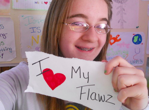 glasses and braces - i love my flawz.png