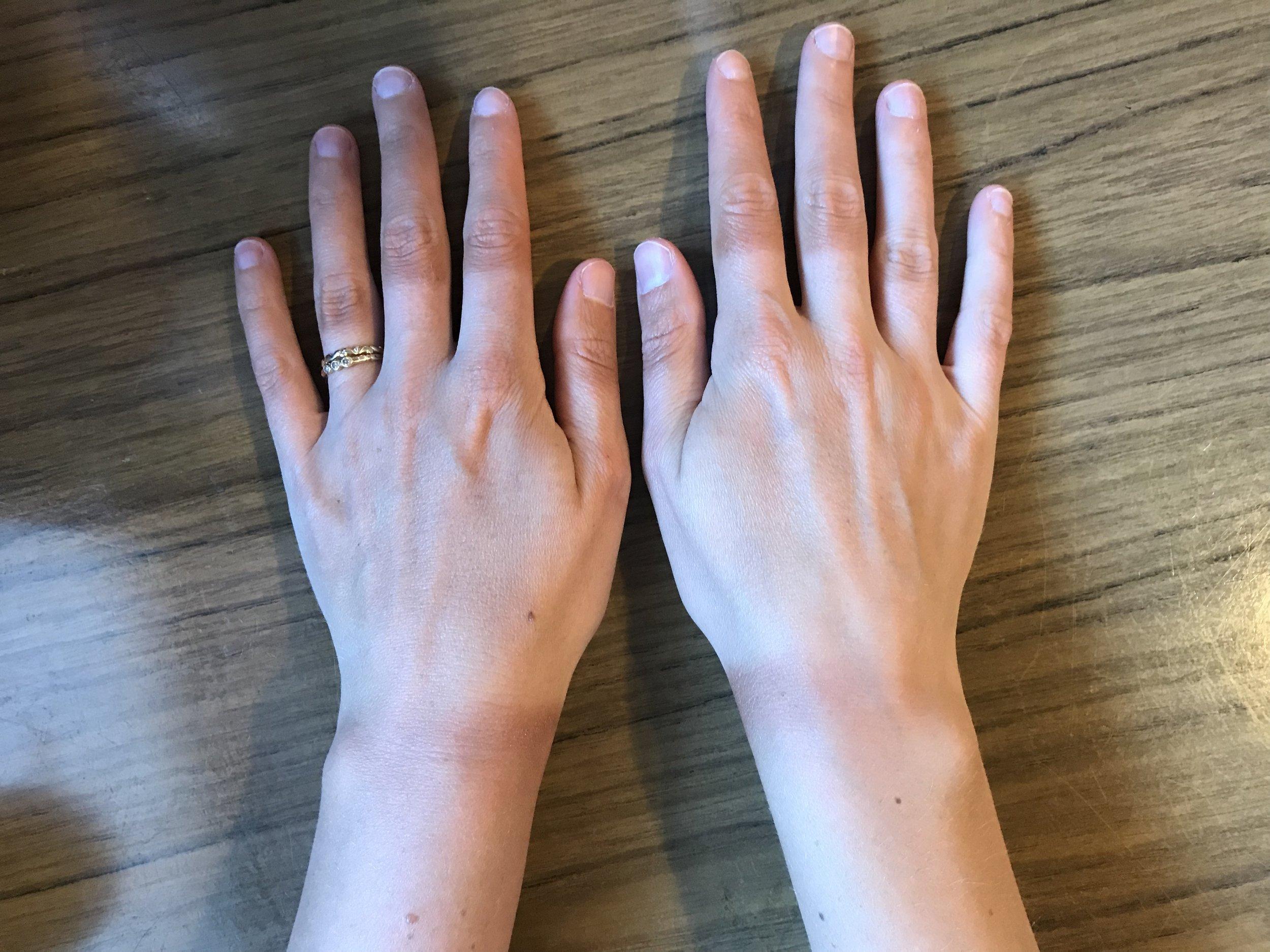 Demonstrating my classy bike glove tan lines.