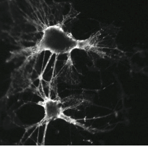 Primary dissociated cortical neurons cultured in our lab.