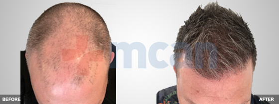 beforeafter-hairtransplantturkey.jpg