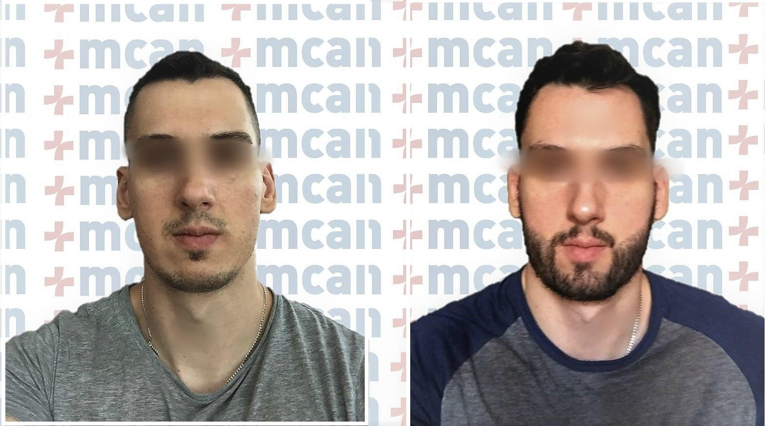 beard transplant before after.jpg