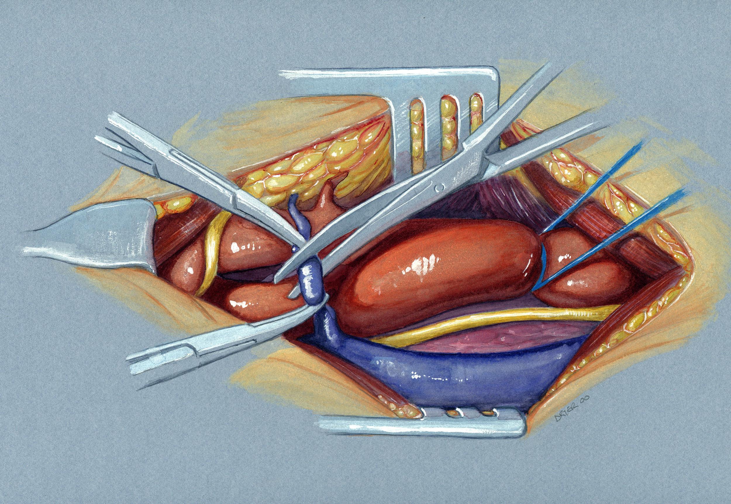 Carotid Endarterectomy Watercolour