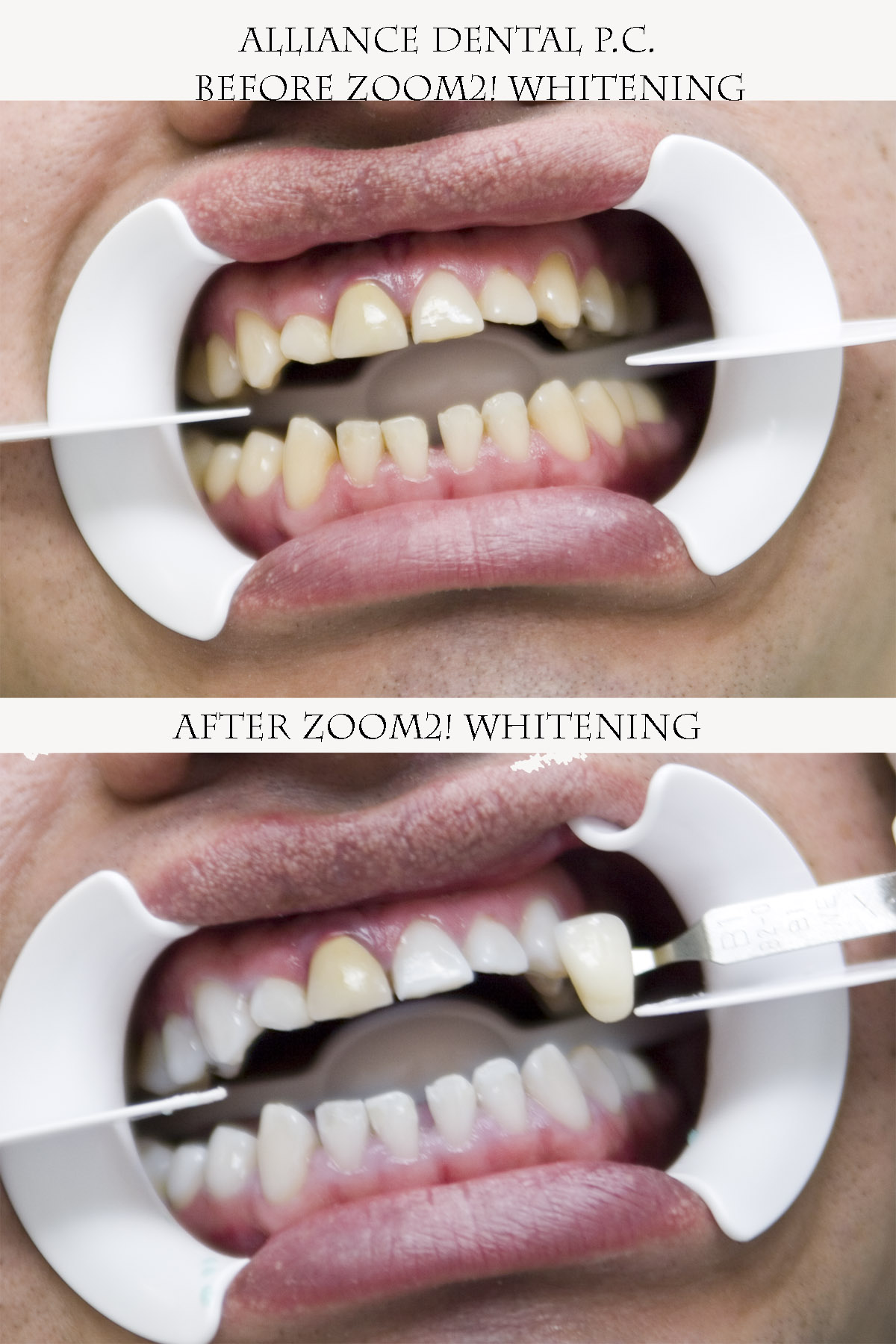 Zoom Professional In-Office Whitening Case #3