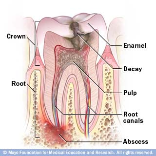 Anatomy of a damaged tooth that requires a Root Canal Treatment