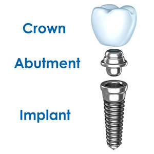 Dental Implant, Abutment and Crown